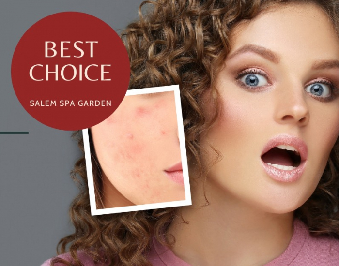 Acne treatment package is committed